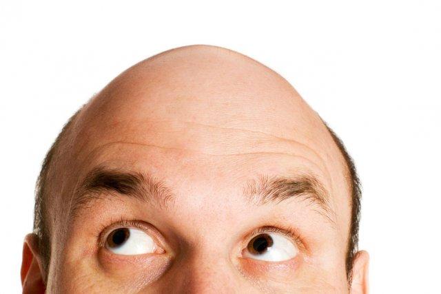 Les hommes qui perdent leurs cheveux sur le... (Photo maga/shutterstock.com)