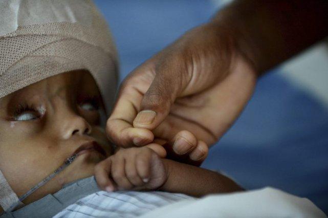Roona Begum est née avec une grave anomalie... (PHOTO ROBERTO SCHMIDT, AFP)