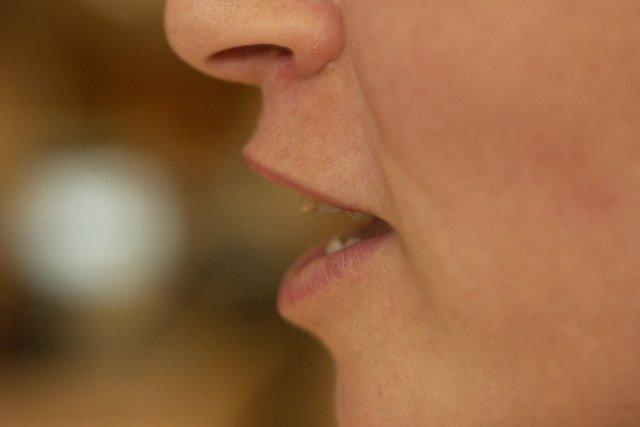 Une Australienne parle depuis huit ans avec un accent français à la suite d'un... (Photo archives La Presse)