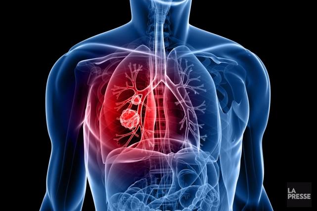cancer du poumon un test pour viter la biopsie mathieu perreault m decine. Black Bedroom Furniture Sets. Home Design Ideas