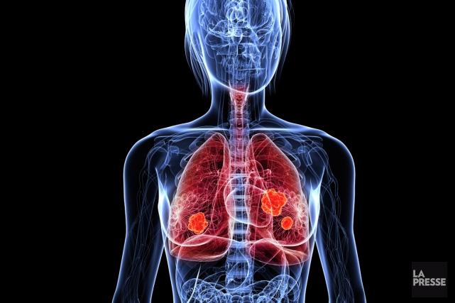 Des compléments de vitamines antioxydantes accélèrent le développement de... (Photo Digital Vision/Thinkstock)
