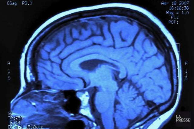 Une éducation prolongée semble protéger le cerveau du déclin cognitif qui... (Photo archives La Presse)