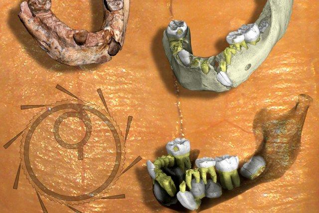 Les chasseurs-cueilleurs avaient d'importants problèmes d'hygiène dentaire puisque... (Photo Bloomberg)