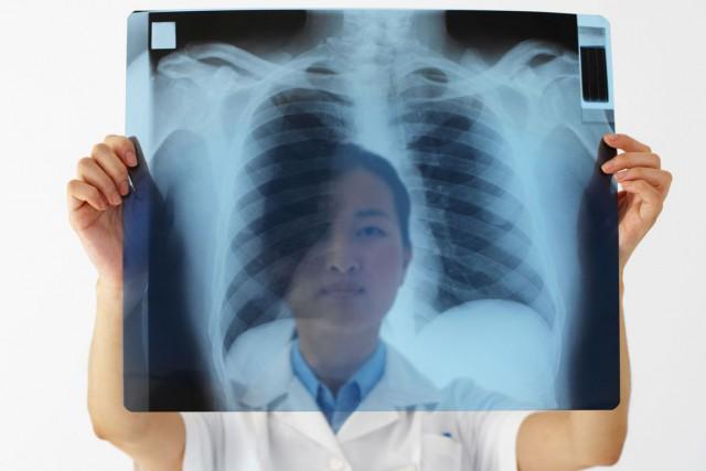 En 2012, le cancer du poumon arrivait en... (Photo archives Photos.com)