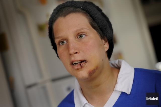 Dominique Laliberté-Martineau avait été blessée à la bouche,... (Photo archives Le Soleil)