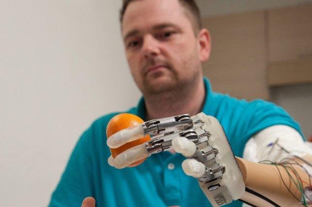 Dennis Aabo Sorensen tient une orange alors qu'il... (Photo Patrizia Tocci, AP)