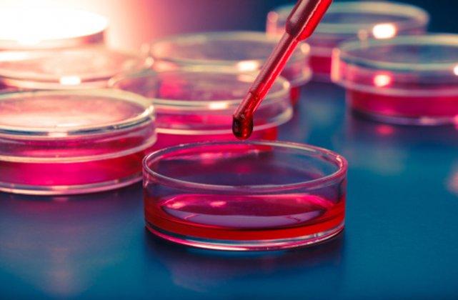 Des chercheurs américains ont développé un nouveau test sanguin permettant de... (PHOTO DIGITAL VISION/THINKSTOCK)