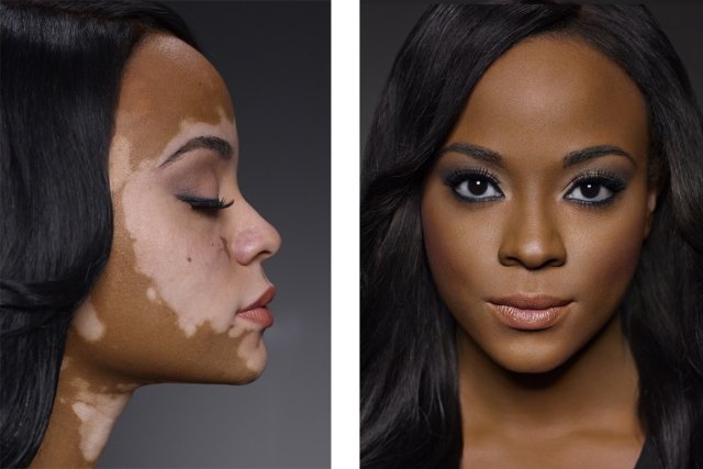 La nouvelle campagne publicitaire des produits cosmétiquesDermablend-mise de... (PHOTO FOURNIE DERMABLEND)