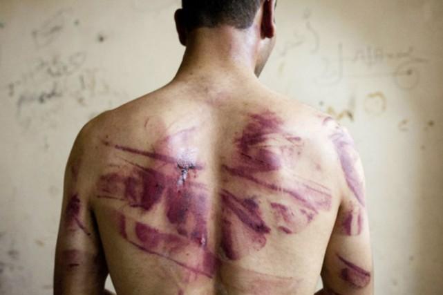 Un homme montre des signes de torture sur... (Archives AFP)