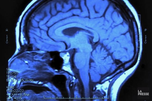 Des chercheurs français sont parvenus à réparer des cellules issues de patients... (PHOTO ARCHIVES LA PRESSE)