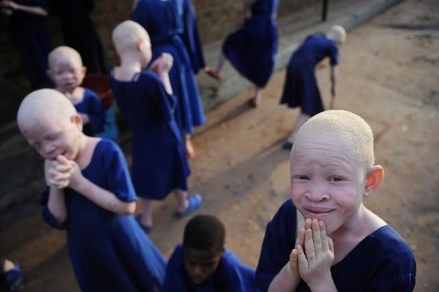 Les assassinats d'albinos sont fréquents dans plusieurs pays... (PHOTO TONY KARUMBA, ARCHIVES AFP)