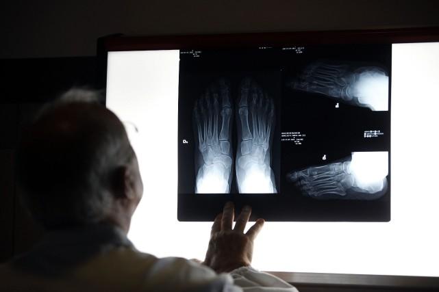 Si l'examen d'une entorse nécessite une radiographie, deux... (PHOTO ARCHIVES BLOOMBERG)