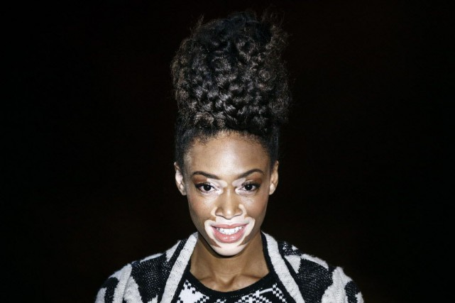 Chantelle Winnie, 20 ans, a enduré moqueries et... (Photo Daniel Ochoa de Olza, AP)