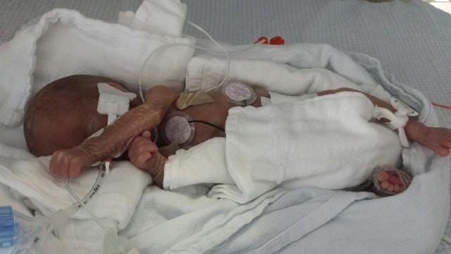 À sa naissance le 4 février,Maddoxpesait à peine... (Photo tirée de Facebook)