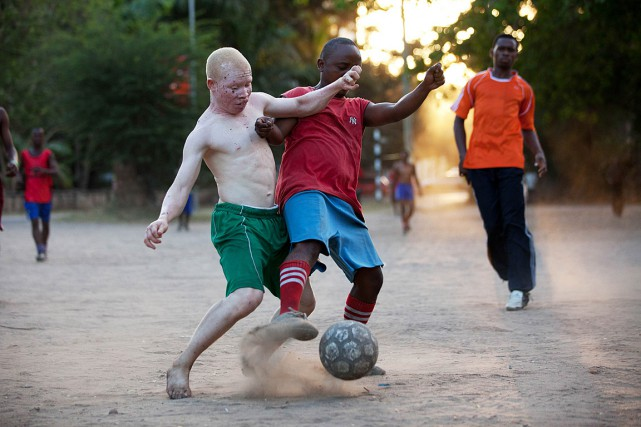«Mettre fin aux meurtres d'albinos, cela est possible,... (PHOTO YASUYOSHI CHIBA, AGENCE FRANCE PRESSE)