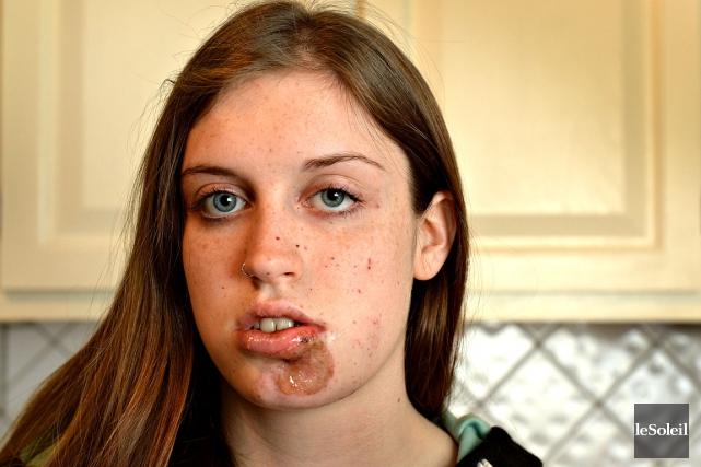 Naomie Tremblay-Trudeau a subi des blessures au visage... (Photo Le Soleil, Patrice Laroche)