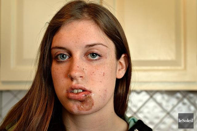 Naomie Tremblay-Trudeau a été blessée au visage par... (Photothèque Le Soleil, Patrice Laroche)