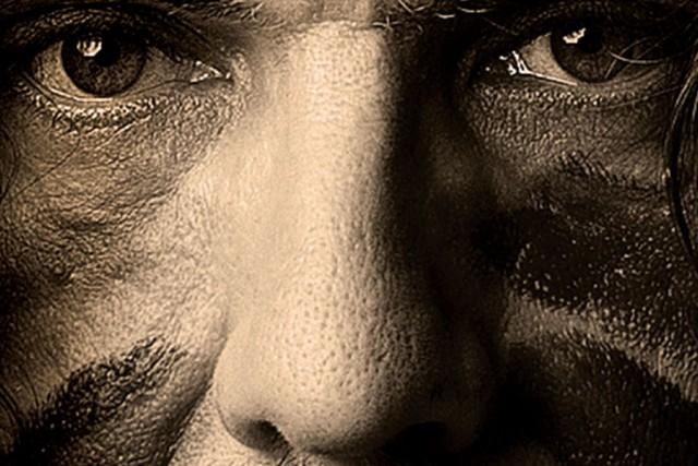 Le titre ne ment pas: les cicatrices qu'arbore Lee Harvey Osmond (LHO) sur son...