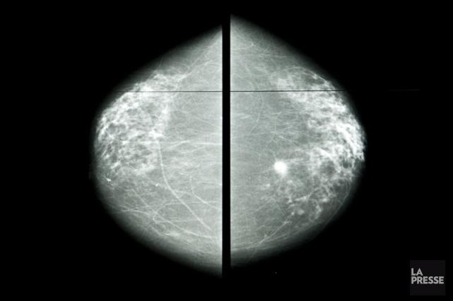 Jusqu'à 20 pour cent des cas de cancer... (PHOTO FRANÇOIS ROY, ARCHIVES LA PRESSE)