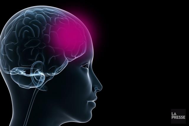 Selon un chercheur montréalais, les conséquences des commotions cérébrales sont... (PHOTOMONTAGE LA PRESSE)