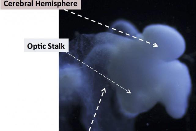Ce cerveau cultivé in vitro, de la taille... (PHOTO AFP)