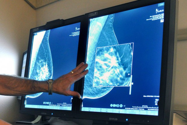 L'étude a observé plus de 100 000 femmes... (Photo Torin Halsey/Times Record News, AP)