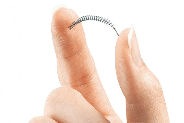 L'implant Essure... (Photo AP)