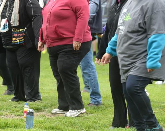 «L'obésité a atteint les proportions d'une épidémie mondiale, rappelle... (ARCHIVES LA NOUVELLE)