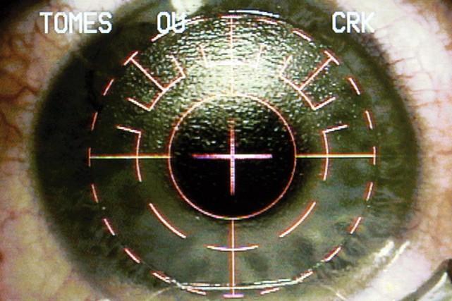 Treize patients espagnols ont perdu la vue d'un oeil et 28 autres ont été... (Photo archives AP)