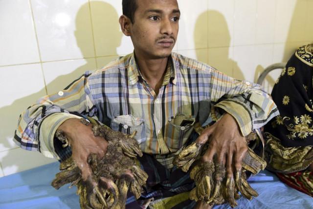 Abul Bajandar subit des examens en vue de... (PHOTO MUNIR UZ ZAMAN, AFP)