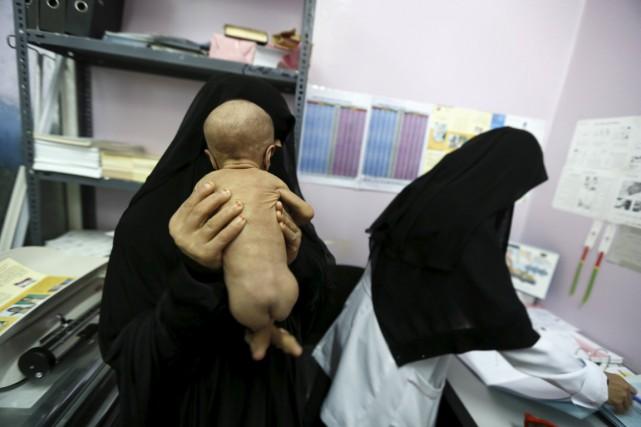 Une femme tient son bébé souffrant de malnutrition... (Photo Khaled Abdullah, Reuters)