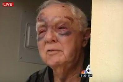 Douglas Brochet a été agressé sauvagement dans une... (Capture d'écran Youtube)