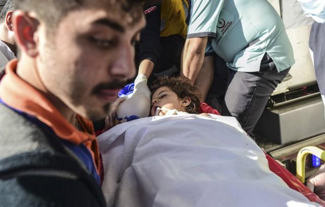 Un enfant syrien blessé par un missile lancé... (AFP, Bulent Kilic)