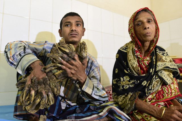 Abul Bajandaravait été admis le mois dernier en... (PHOTO MUNIR UZ ZAMAN, ARCHIVES AFP)