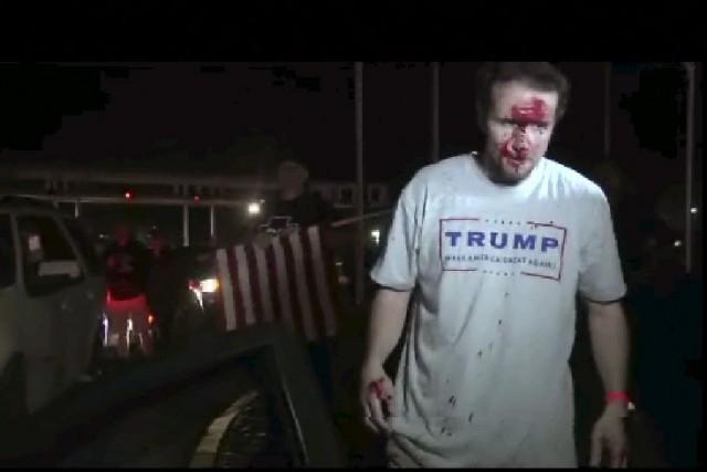 Un fan de Donald Trump après le combat.... (AP)