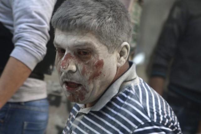 Cet homme a été blessé lors des frappes... (PHOTO ABDALRHMAN ISMAIL, REUTERS)