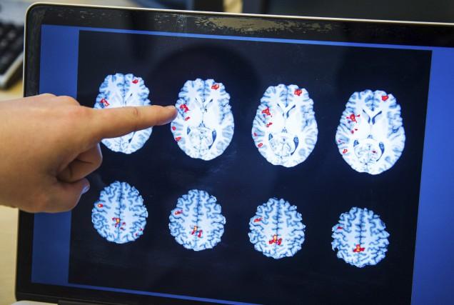 Le neuropsychiatre Benny Liberge, de l'hôpital Huddinge, près... (AFP, Jonathan Nackstrand)