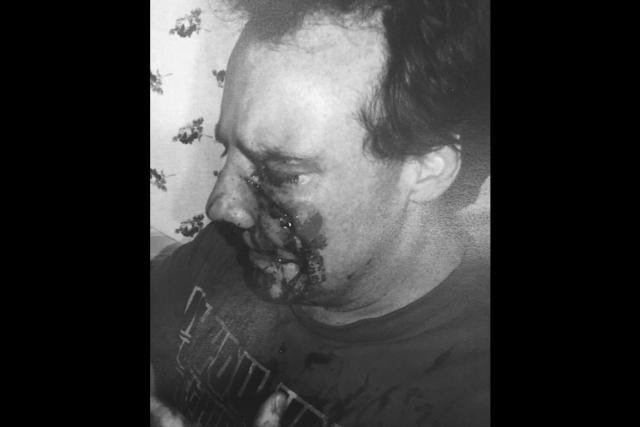 Les blessures subies par le Gatinois Pascal Bertrand... (Courtoisie)