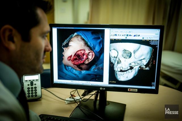 Le chirurgien Daniel Borsuk a été l'un des... (PHOTO MARTIN TREMBLAY, ARCHIVES LA PRESSE)
