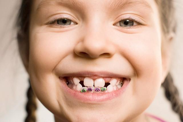 « Quand j'étais petite, j'avais les dents avancées. Les deux palettes d'en haut... (123rf)