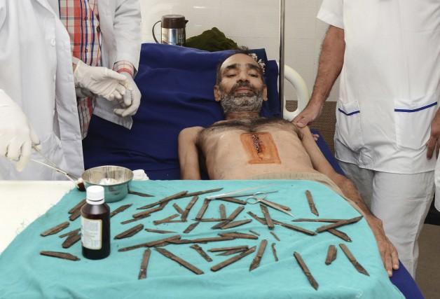Le policier Surjeet Singh a été opéré après... (AP)