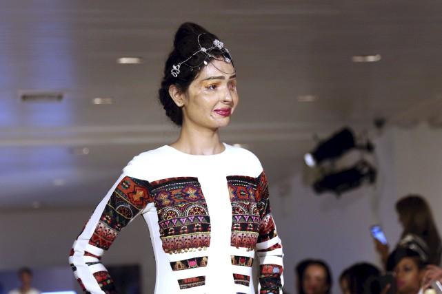 Victime d'une attaque à l'acide, la mannequin indienne... (AFP)