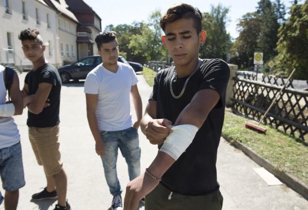 Mehdi, du Maroc, montre ses blessures à la... (AP)