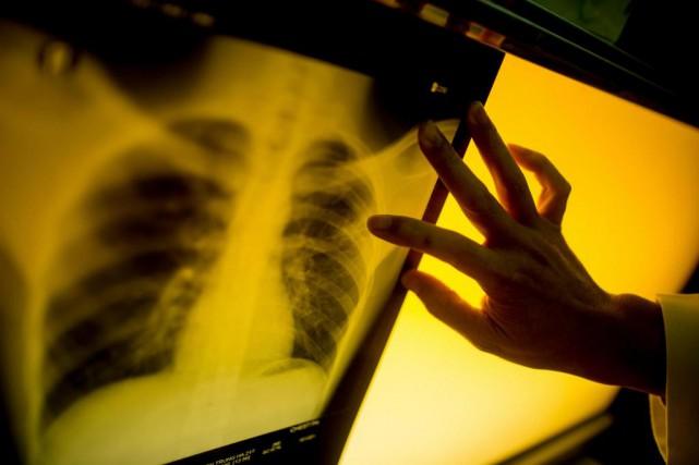La tuberculose, qui touche souvent les poumonts, figure... (PhotoJustin Mott,The New York Times)