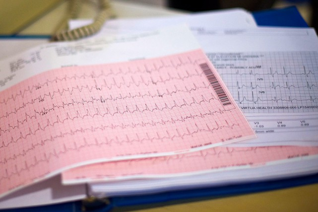 Un électrocardiogramme.... (Photo Mark Makela, archives The New York Times)