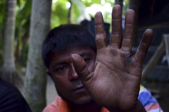 Un réfugié Rohingya refugee Mujibullah montre sa main... (AFP)