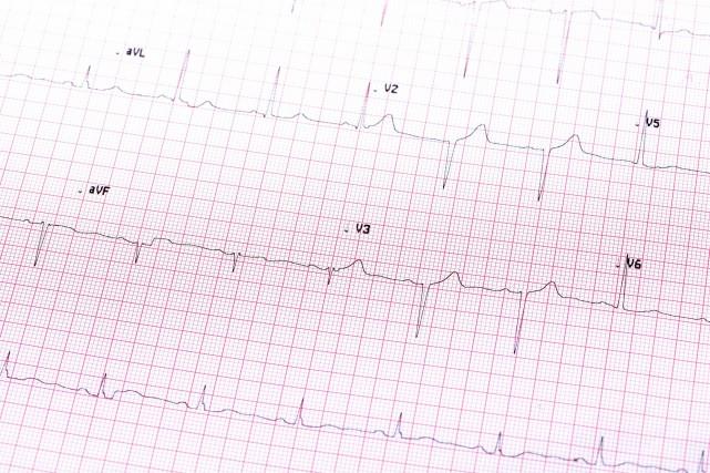 Les travaux d'agrandissement de l'Institut de cardiologie de l'Université... (123RF)