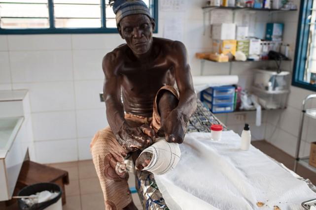 Au Bénin, la lèpre n'est pas éradiquée et... (STEFAN HEUNIS, AFP)