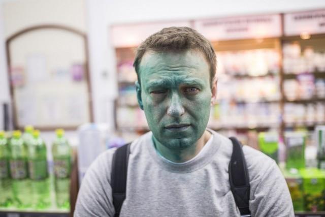 «Shrek 2 : désormais borgne», a écrit Alexeï... (PHOTO NAVALNY.COM)