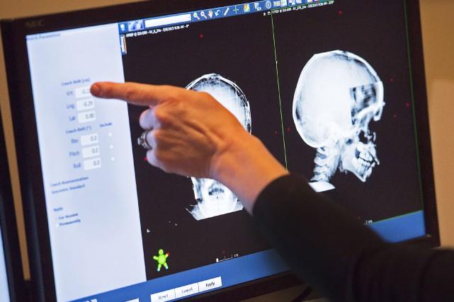 Selon Migraine Québec, 88% des femmes souffriront de... (Photo archives La Presse canadienne)
